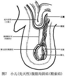 盲肠的三种特殊结构