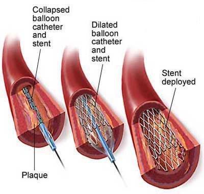 心脏冠状血管结构图